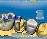 Sirona InLab Software